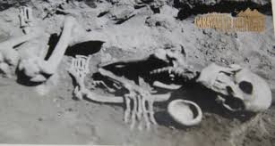 six fingered skeleton